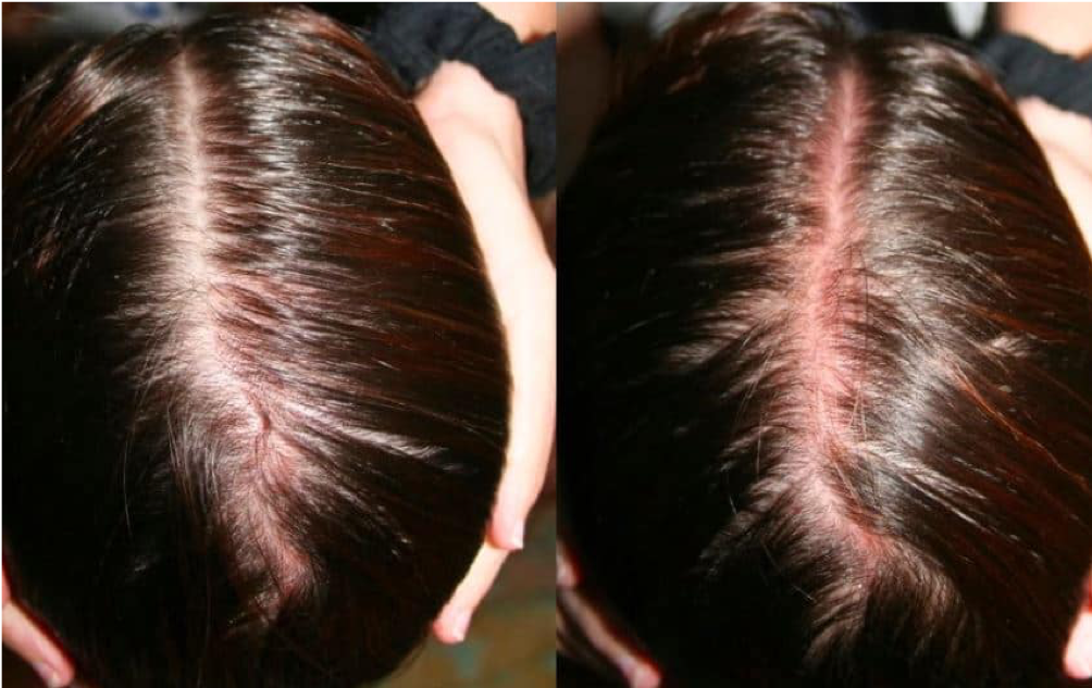RED SCALP DISEASE